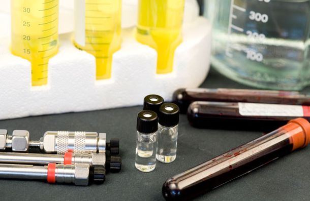 blood and urine test vials
